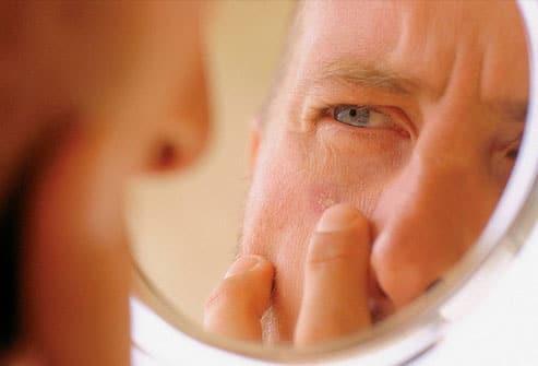 self skin check