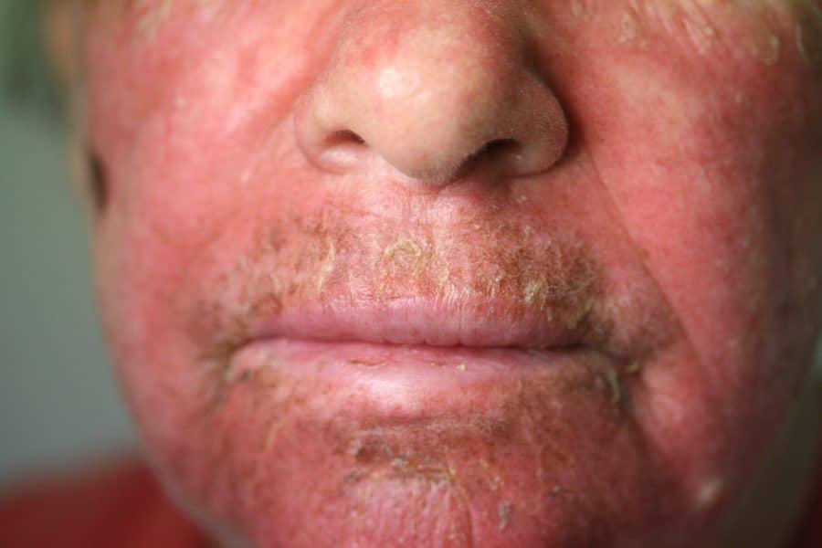 Efudix – Queensland Skin Clinic